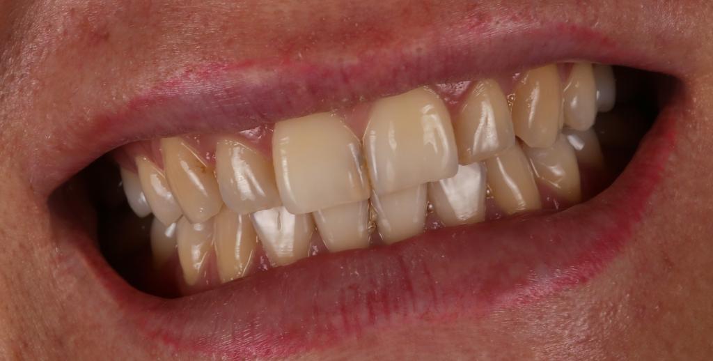 отбеливание зубов зум стоимость