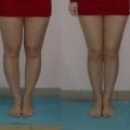 """Отзыв о Ремни """"Идеальная форма"""": Как быть, если ноги кривоваты? Есть ли способ исправить это?"""
