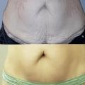 Отзыв о Аппаратное похудение: Подтянула живот после родов с помощью аппарата Accent