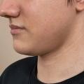 Отзыв о Аппаратное похудение: Коррекцию своего тела начала с кулскалптинга и вполне успешно!